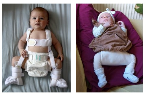 tratamentul displaziei de șold 6 luni)